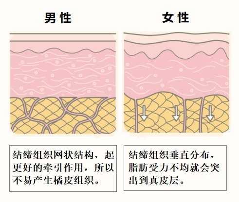 橘皮组织是怎样形成的,以及如何消除橘皮纹