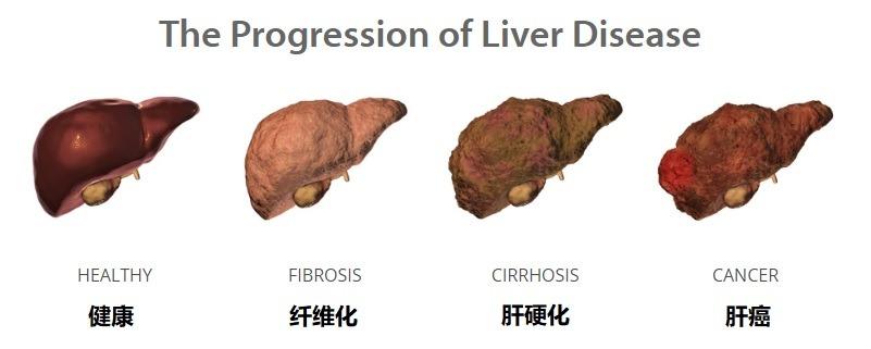 肝病的原因和症状,如何护肝养肝
