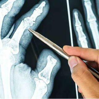 骨质疏松怎么办?增加骨密度的12种方法