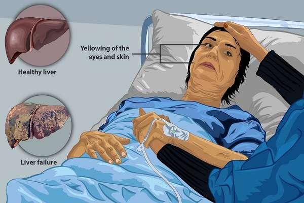 肝脏不好、肝毒太重时身体发出的10个信号